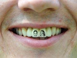 Фото: Тату на зубах